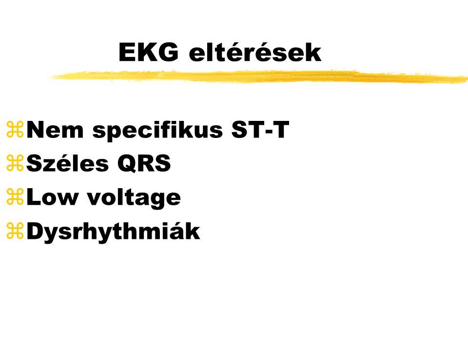 EKG eltérések zNem specifikus ST-T zSzéles QRS zLow voltage  Dysrhythmiák