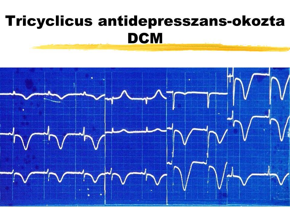 Tricyclicus antidepresszans-okozta DCM