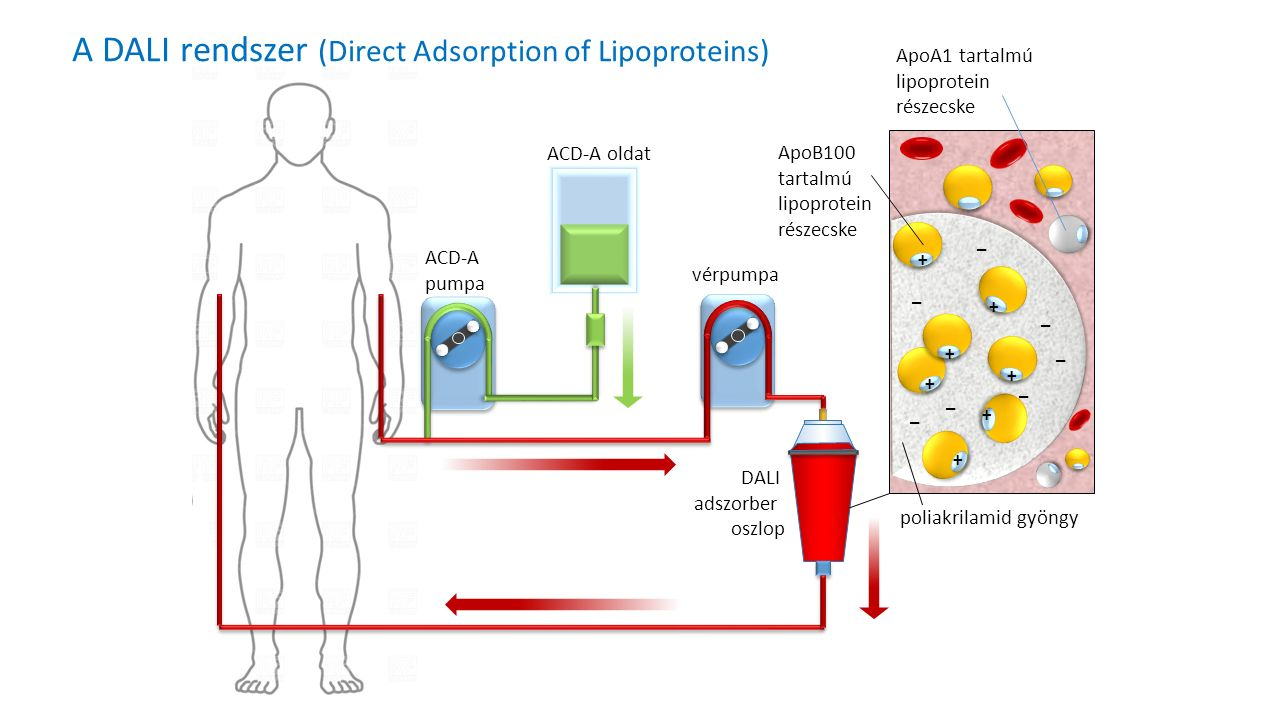 ACD-A oldat ACD-A pumpa vérpumpa DALI adszorber oszlop + + + + + + + _ _ _ _ _ _ _ ApoB100 tartalmú lipoprotein részecske poliakrilamid gyöngy ApoA1 tartalmú lipoprotein részecske A DALI rendszer (Direct Adsorption of Lipoproteins)