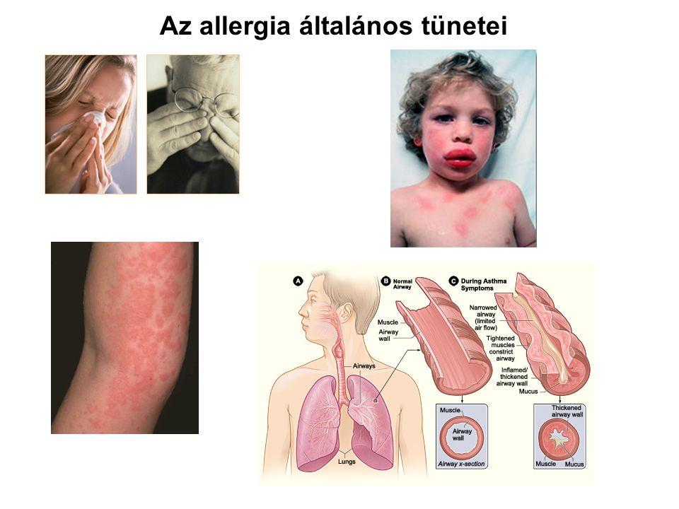 Az allergia általános tünetei