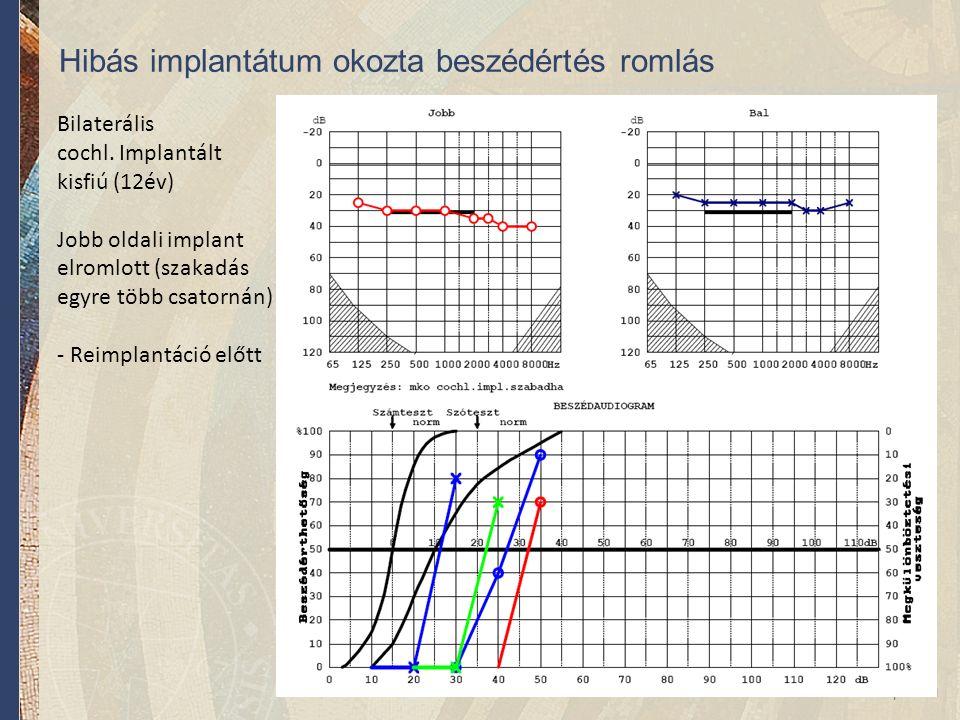 Bilaterális cochl. Implantált kisfiú (12év) Jobb oldali implant elromlott (szakadás egyre több csatornán) - Reimplantáció előtt Hibás implantátum okoz