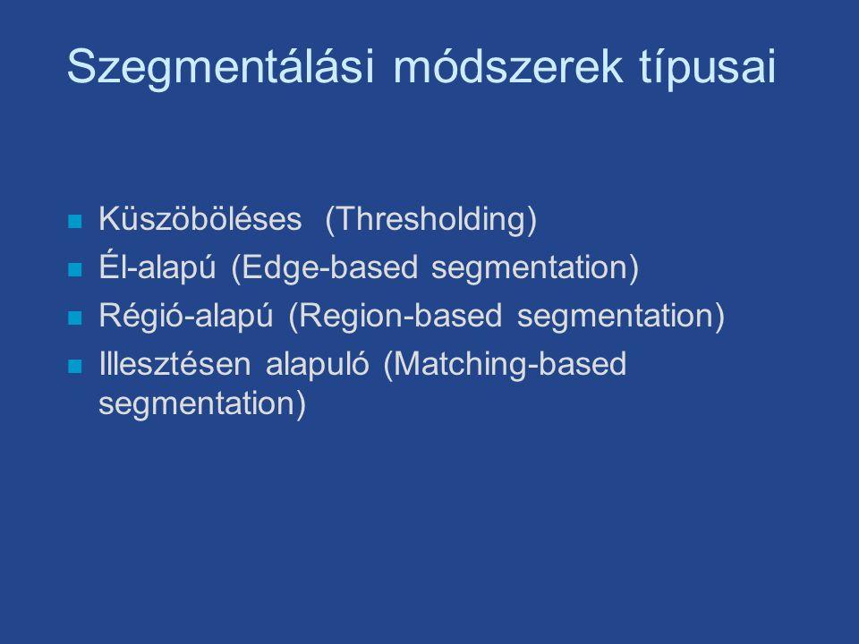Szegmentálási módszerek típusai n Küszöböléses (Thresholding) n Él-alapú (Edge-based segmentation) n Régió-alapú (Region-based segmentation) n Illesztésen alapuló (Matching-based segmentation)