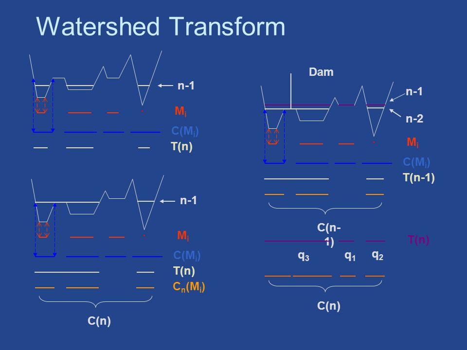 Watershed Transform MiMi C(M i ) n-1 T(n) MiMi C(M i ) n-1 T(n) C n (M i ) C(n) MiMi C(M i ) n-2 T(n-1) C(n- 1) n-1 T(n) q1q1 q2q2 q3q3 Dam C(n)