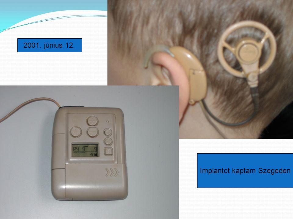 2001. június 12. Implantot kaptam Szegeden