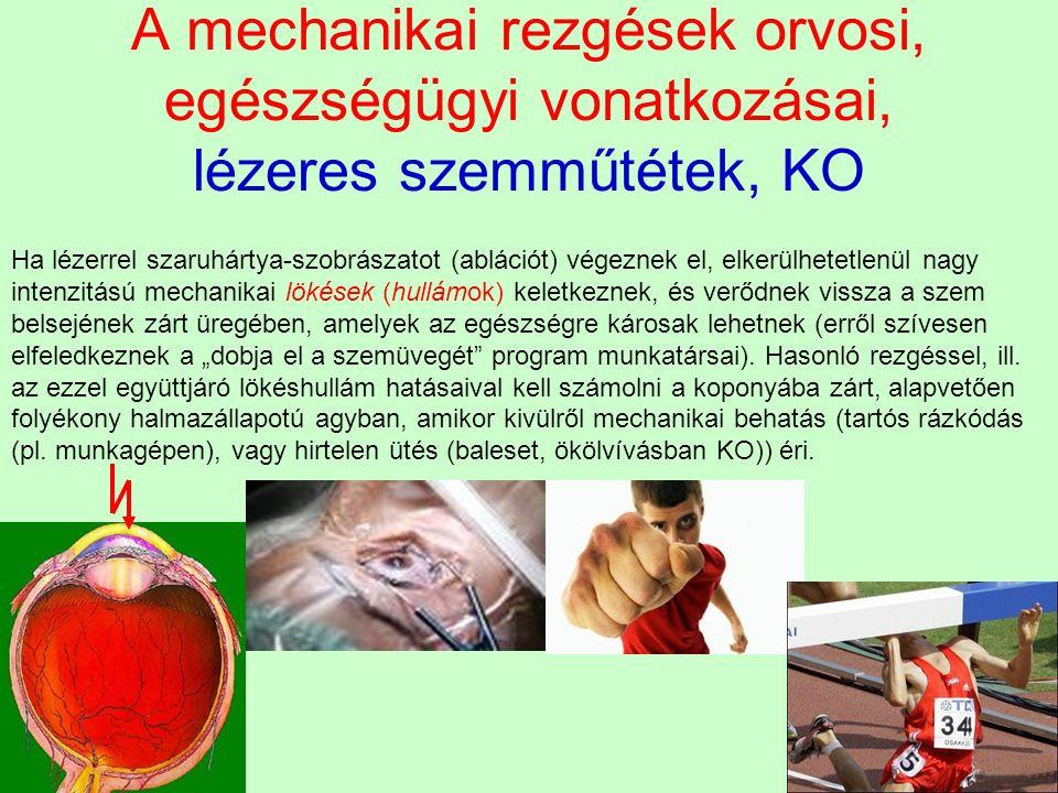 """A mechanikai rezgések orvosi, egészségügyi vonatkozásai, lézeres szemműtétek, KO Ha lézerrel szaruhártya-szobrászatot (ablációt) végeznek el, elkerülhetetlenül nagy intenzitású mechanikai lökések (hullámok) keletkeznek, és verődnek vissza a szem belsejének zárt üregében, amelyek az egészségre károsak lehetnek (erről szívesen elfeledkeznek a """"dobja el a szemüvegét program munkatársai)."""