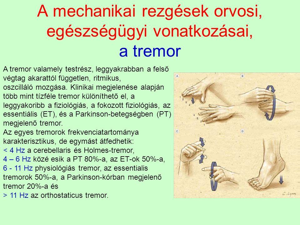 A mechanikai rezgések orvosi, egészségügyi vonatkozásai, a tremor A tremor valamely testrész, leggyakrabban a felső végtag akarattól független, ritmik