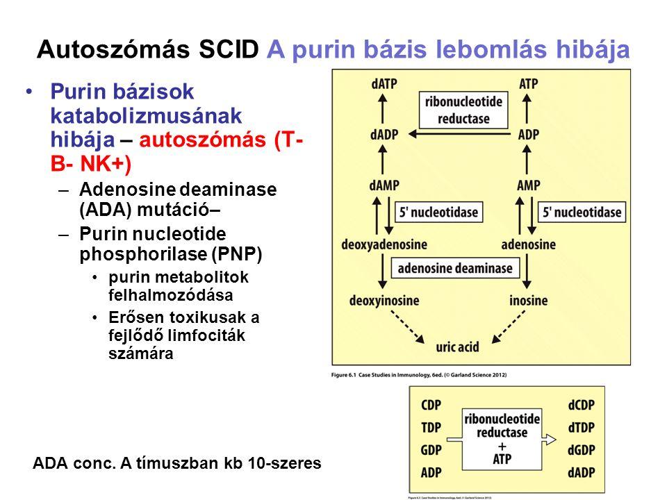 Purin bázisok katabolizmusának hibája – autoszómás (T- B- NK+) –Adenosine deaminase (ADA) mutáció– –Purin nucleotide phosphorilase (PNP) purin metabolitok felhalmozódása Erősen toxikusak a fejlődő limfociták számára Autoszómás SCID A purin bázis lebomlás hibája ADA conc.
