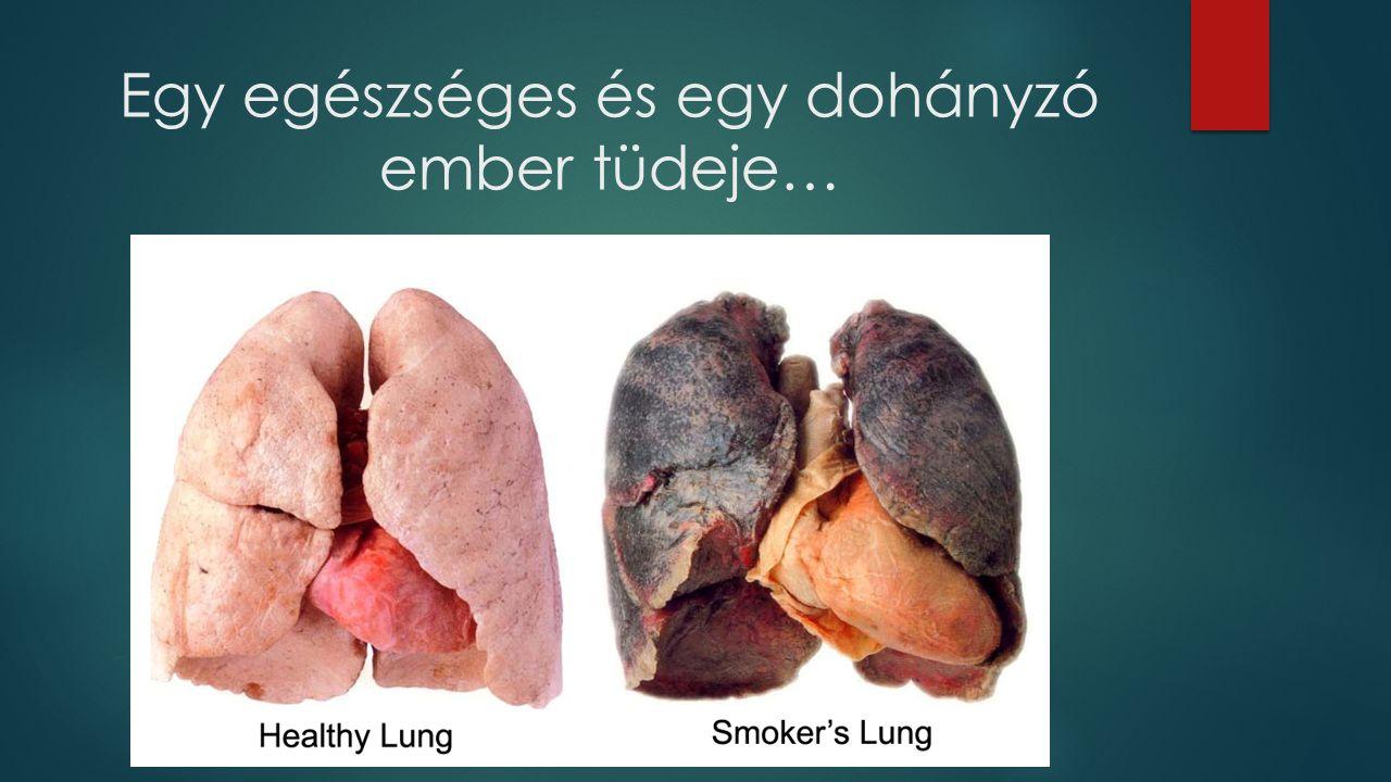 Egy egészséges és egy dohányzó ember tüdeje…