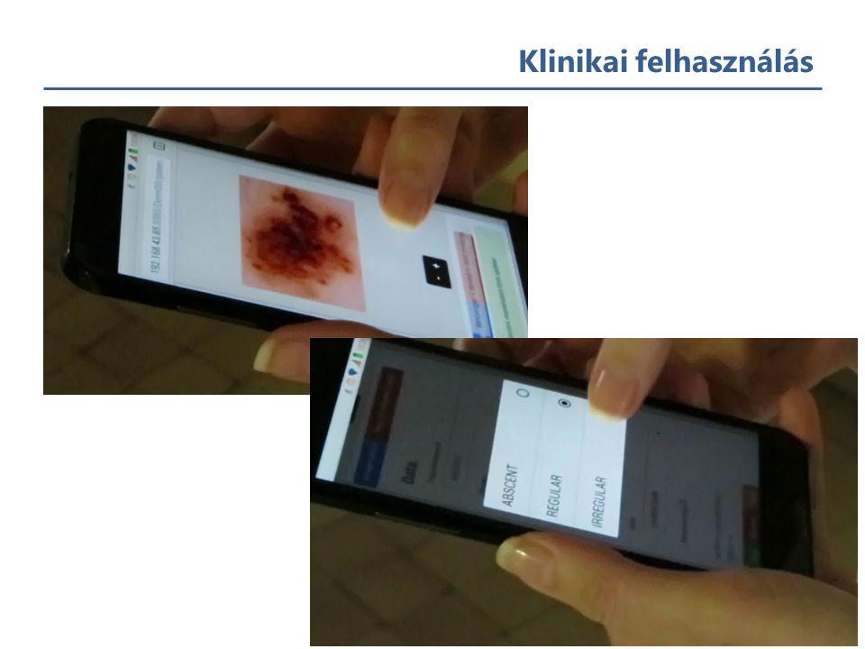 Klinikai felhasználás - dermatológia 20 Kényelmes webes megoldás képek tárolásához letöltéséhez, elemzéséhez és megosztásához (diagnosztika) Betegadatok tárolása Elváltozások időbeli követhetősége Annotálhatóság Fő funkcionalitások – Felhasználó-kezelés – Betegrekord-kezelés – Rekordok megosztása – Adatbázis keresése