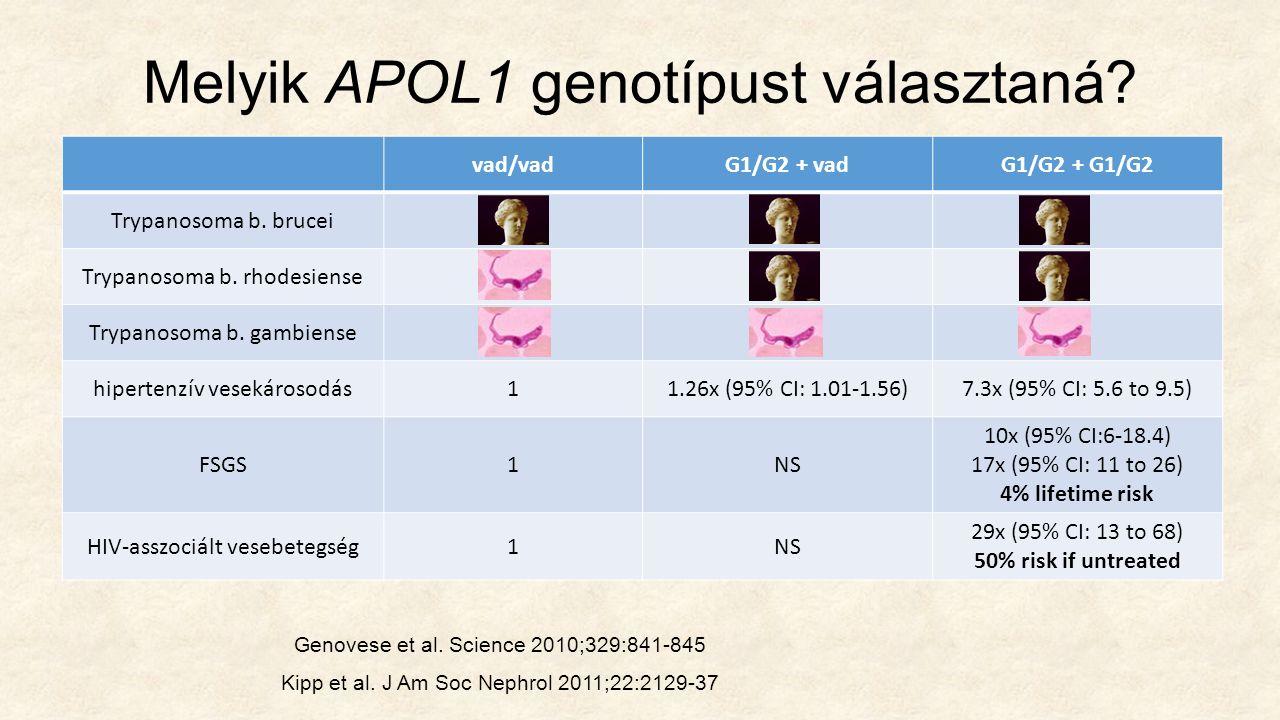 Melyik APOL1 genotípust választaná. vad/vadG1/G2 + vadG1/G2 + G1/G2 Trypanosoma b.
