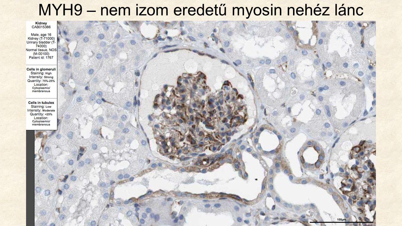 MYH9 – nem izom eredetű myosin nehéz lánc