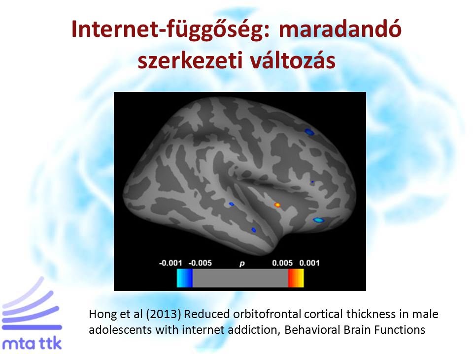 Internet-függőség: maradandó szerkezeti változás Hong et al (2013) Reduced orbitofrontal cortical thickness in male adolescents with internet addiction, Behavioral Brain Functions