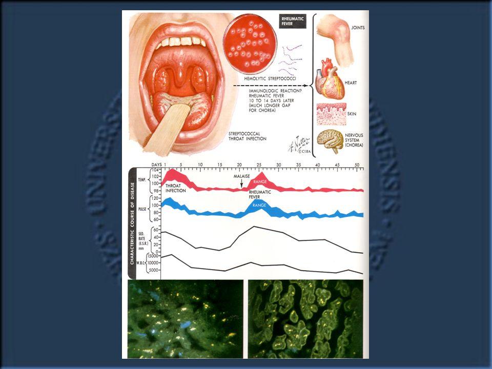 A később jelentkező rheumás láz már többnyire recidíva, melyet szintén streptococcus  -haemolyticus fertőzés lobbant fel.