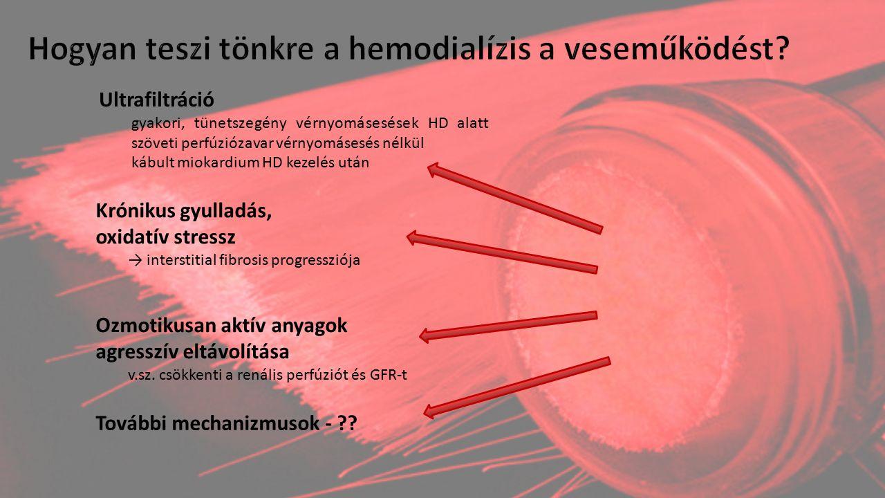 Ultrafiltráció gyakori, tünetszegény vérnyomásesések HD alatt szöveti perfúziózavar vérnyomásesés nélkül kábult miokardium HD kezelés után Krónikus gy