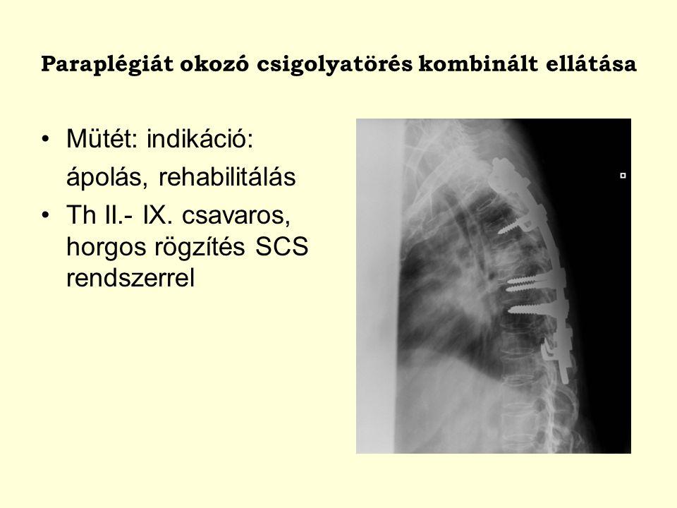 Paraplégiát okozó csigolyatörés kombinált ellátása Mütét: indikáció: ápolás, rehabilitálás Th II.- IX. csavaros, horgos rögzítés SCS rendszerrel