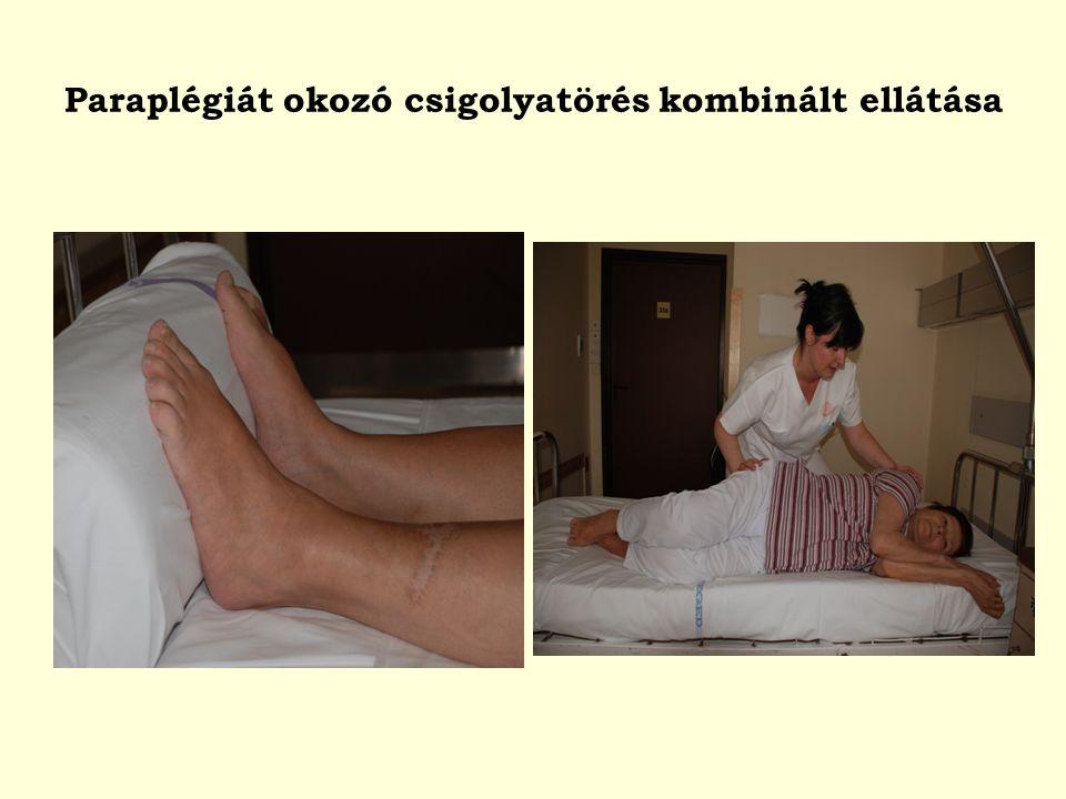 Paraplégiát okozó csigolyatörés kombinált ellátása
