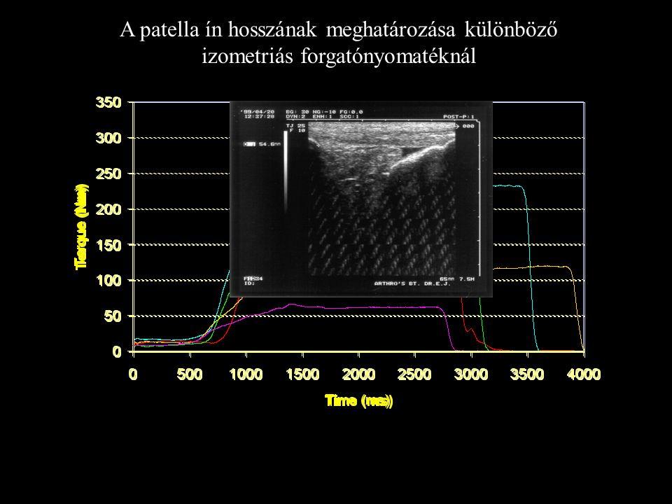 A patella ín hosszának mérése ultrahang segítségével Hitachi, Electronic Ultrasound Scanner, EUB-405 EUP-L33, 75 Hz, 64 mm