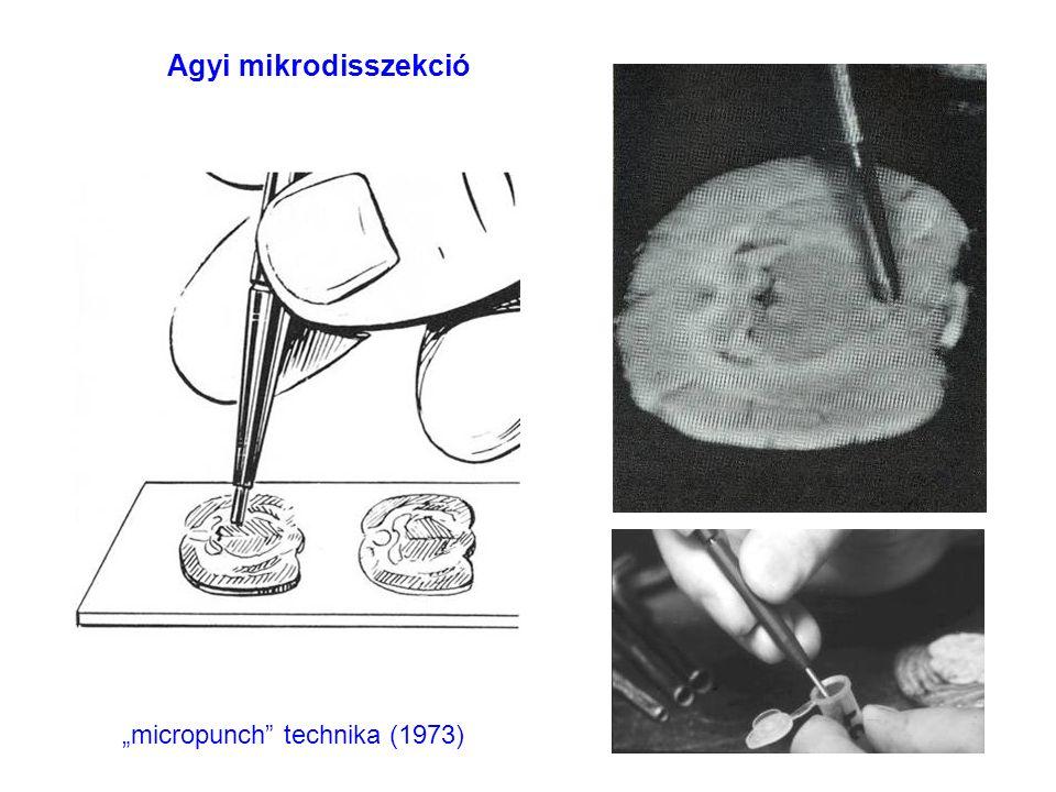 """""""micropunch technika (1973) Agyi mikrodisszekció"""
