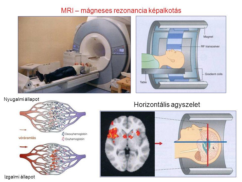 MRI – mágneses rezonancia képalkotás Horizontális agyszelet Nyugalmi állapot Izgalmi állapot
