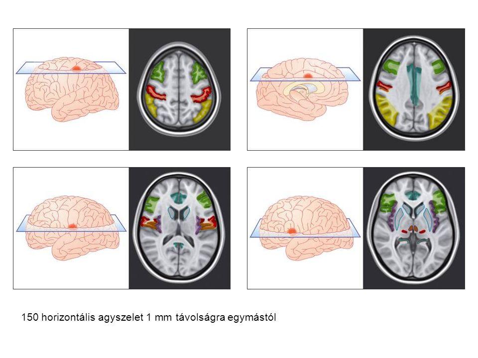 150 horizontális agyszelet 1 mm távolságra egymástól