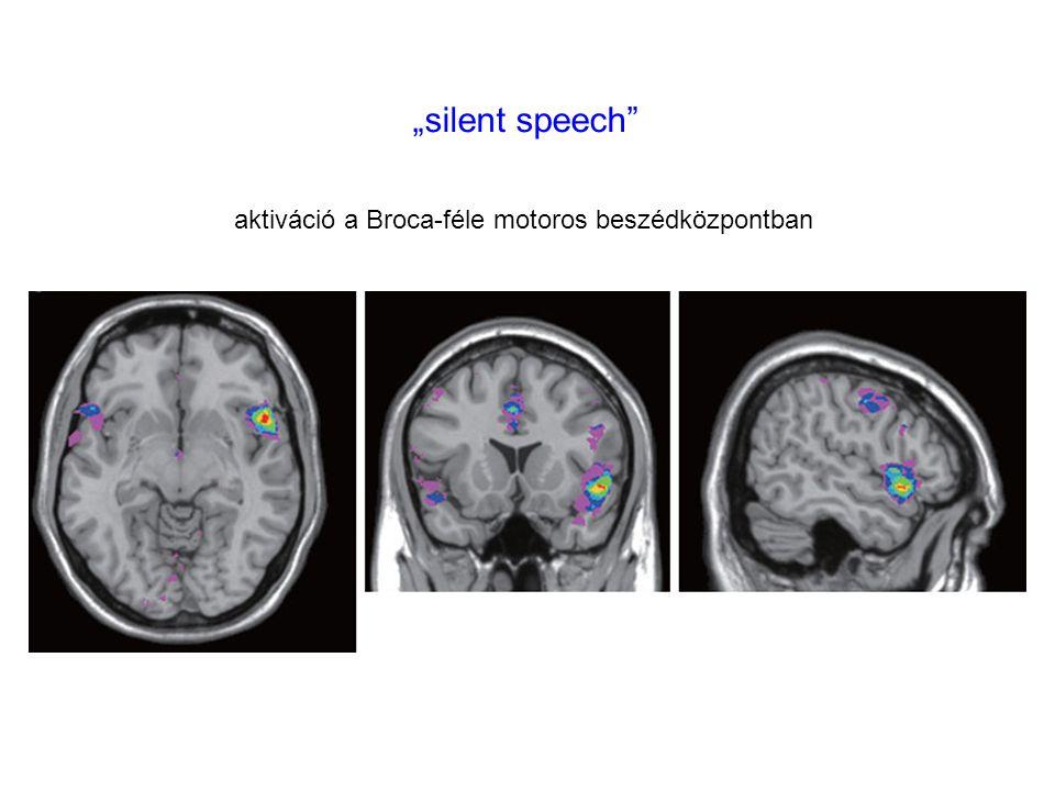 """""""silent speech aktiváció a Broca-féle motoros beszédközpontban"""