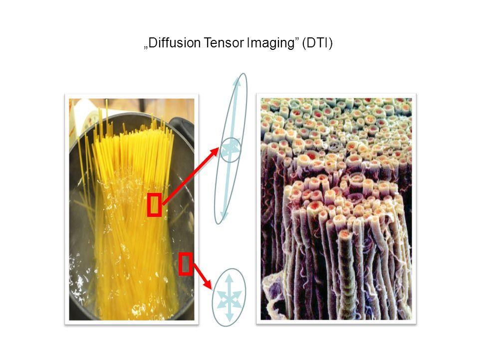 """Diffusion Tensor Imaging (DTI)"