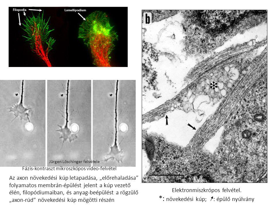 """Jürgen Löschinger felvétele Az axon növekedési kúp letapadása, """"előrehaladása folyamatos membrán-épülést jelent a kúp vezető élén, filopódiumaiban, és anyag-beépülést a rögzülő """"axon-rúd növekedési kúp mögötti részén Fázis-kontraszt mikroszkópos video-felvétel Elektronmiszkrópos felvétel."""