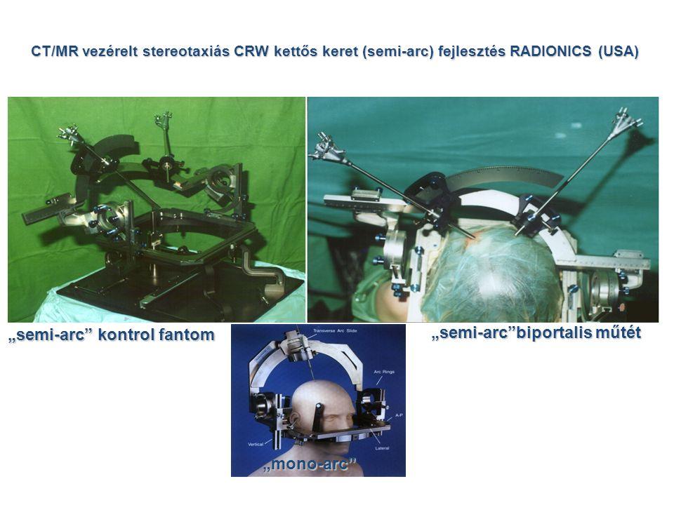 """CT/MR vezérelt stereotaxiás CRW kettős keret (semi-arc) fejlesztés RADIONICS (USA) """"semi-arc kontrol fantom """"semi-arc biportalis műtét """"mono-arc"""