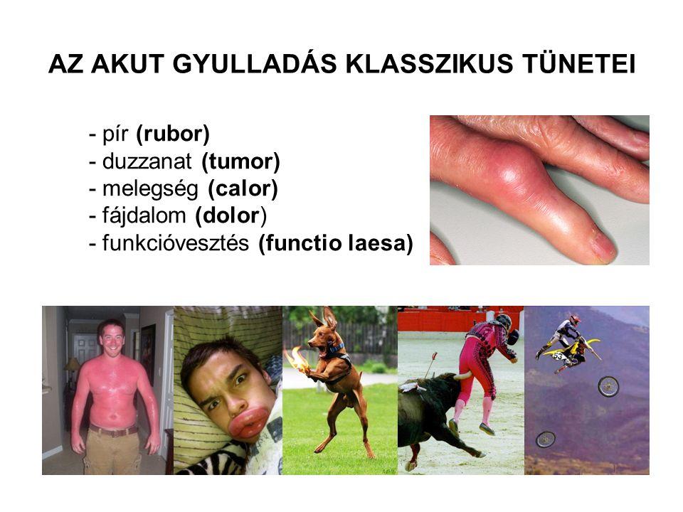 - pír (rubor) - duzzanat (tumor) - melegség (calor) - fájdalom (dolor) - funkcióvesztés (functio laesa) AZ AKUT GYULLADÁS KLASSZIKUS TÜNETEI