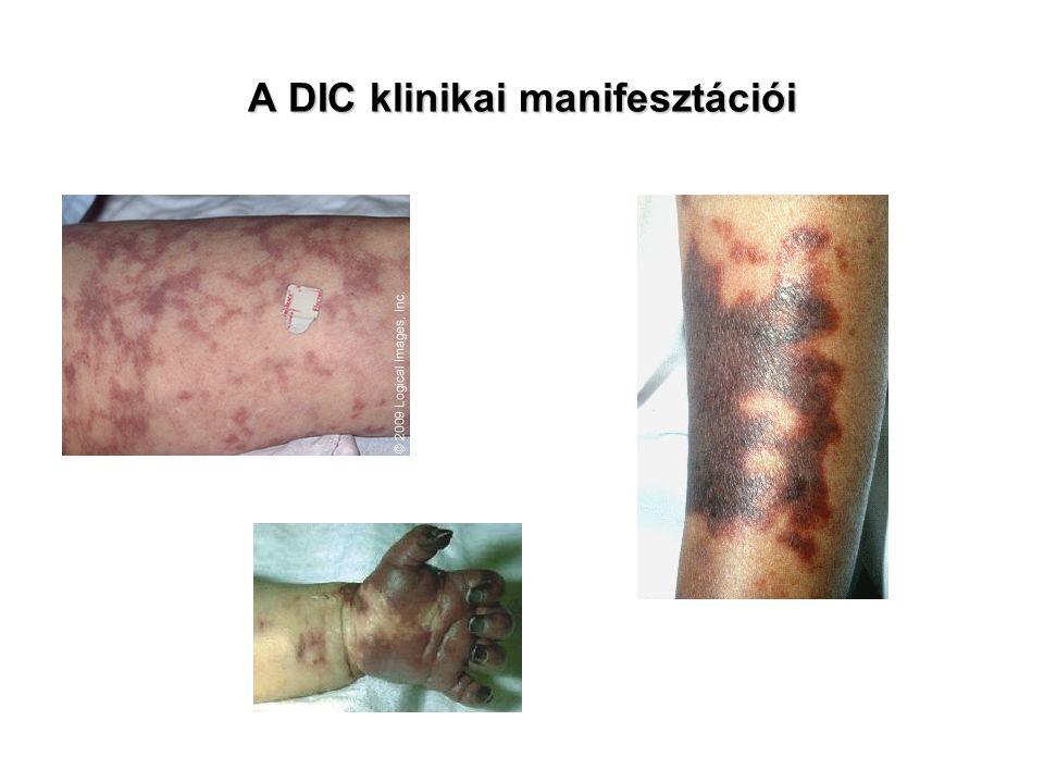 A DIC klinikai manifesztációi