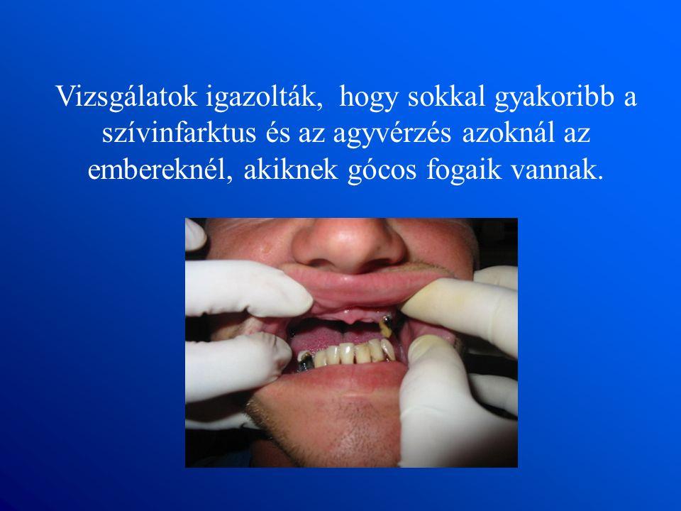 Vizsgálatok igazolták, hogy sokkal gyakoribb a szívinfarktus és az agyvérzés azoknál az embereknél, akiknek gócos fogaik vannak.