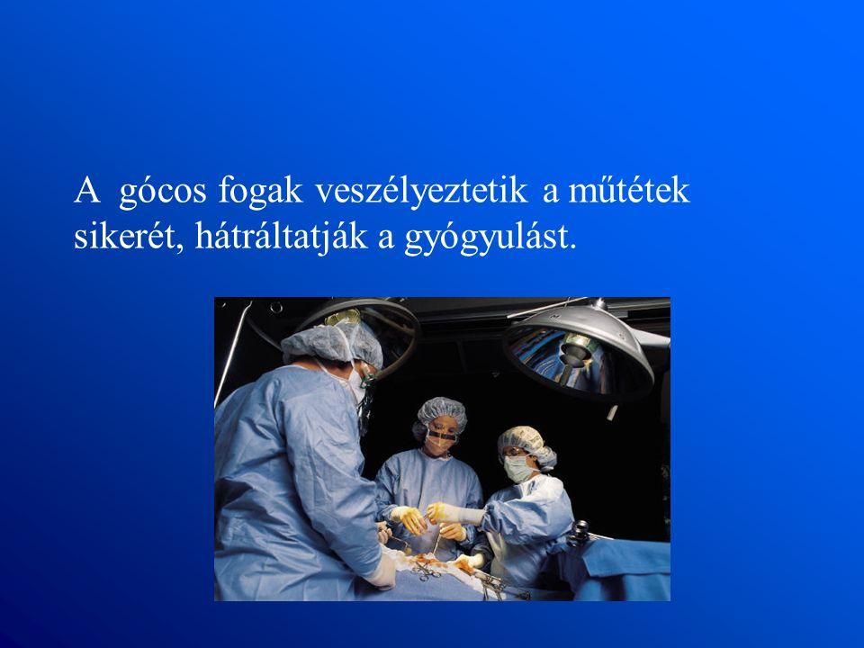 A gócos fogak veszélyeztetik a műtétek sikerét, hátráltatják a gyógyulást.