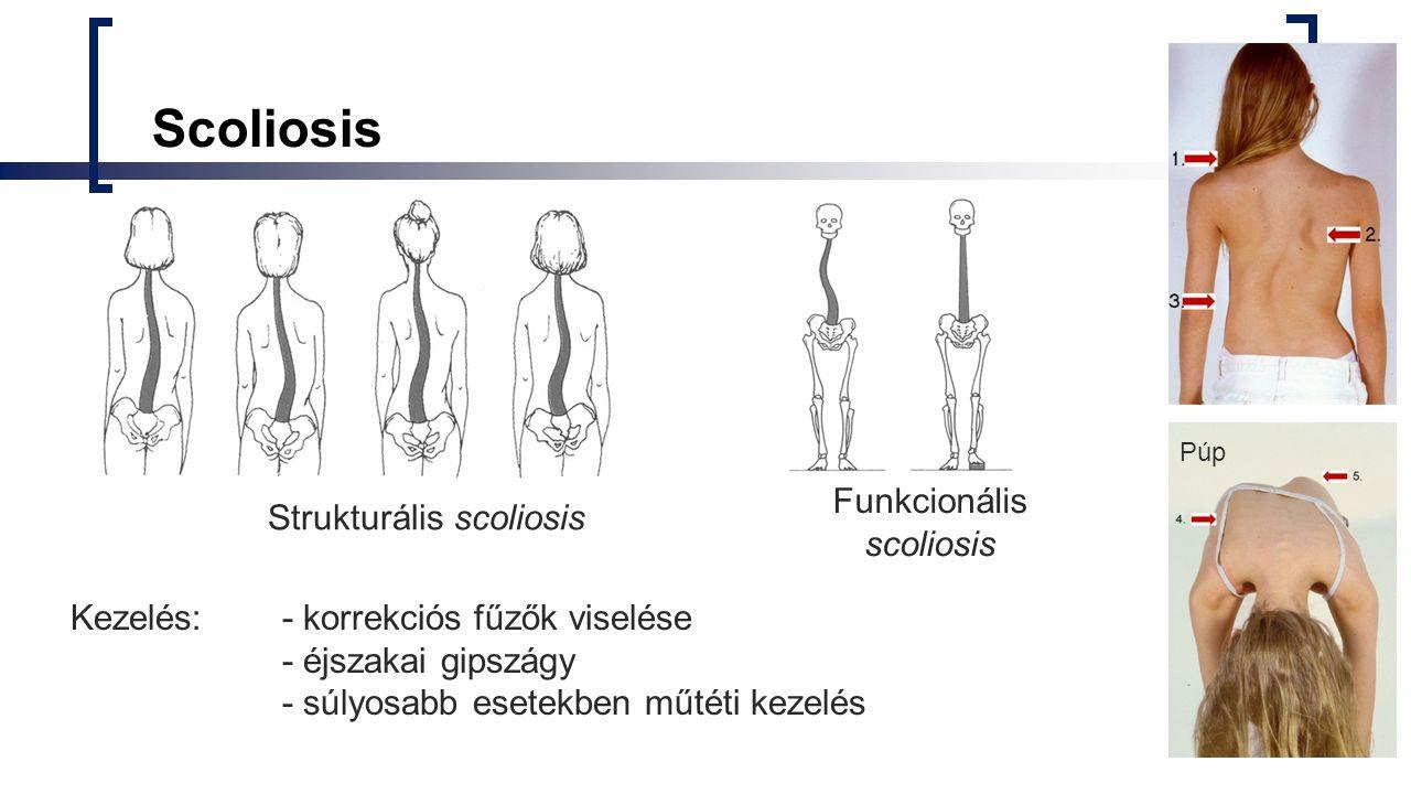 Scoliosis Strukturális scoliosis Funkcionális scoliosis Kezelés: - korrekciós fűzők viselése - éjszakai gipszágy - súlyosabb esetekben műtéti kezelés Púp