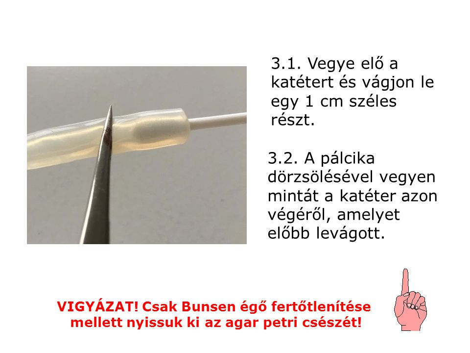 3.1. Vegye elő a katétert és vágjon le egy 1 cm széles részt.