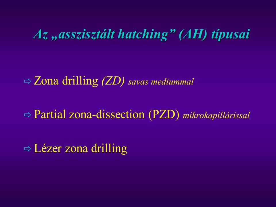 """Az """"asszisztált hatching"""" (AH) típusai  Zona drilling (ZD) savas mediummal  Partial zona-dissection (PZD) mikrokapillárissal  Lézer zona drilling"""