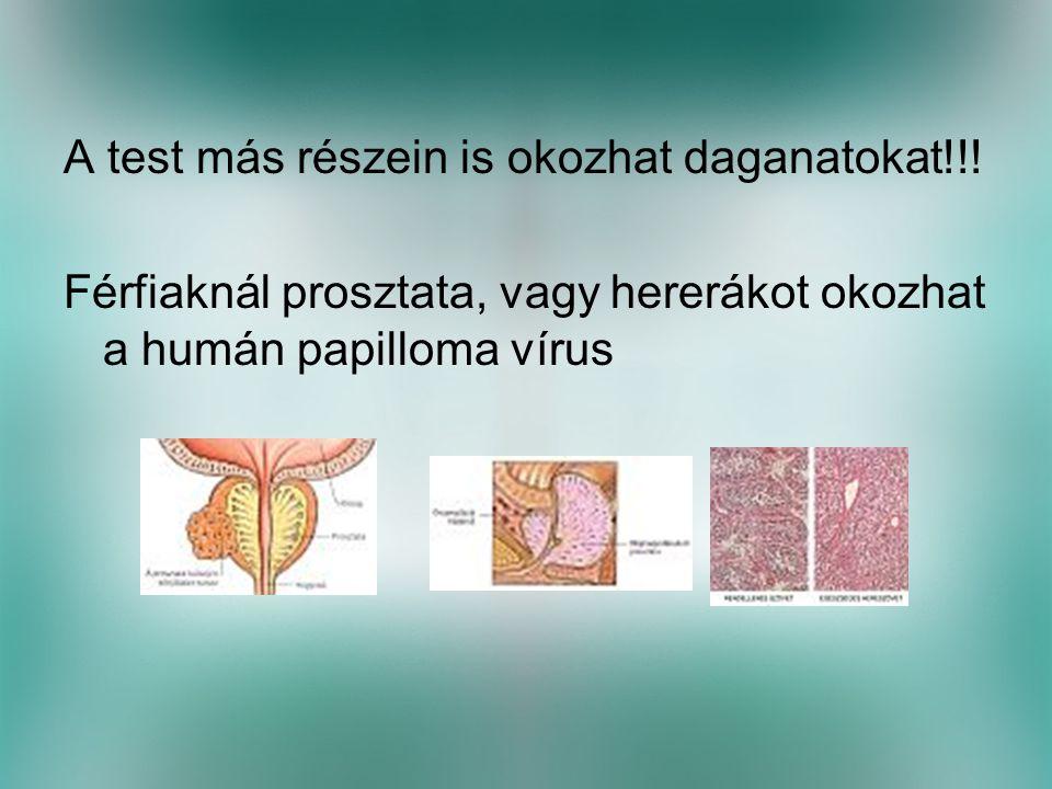 A test más részein is okozhat daganatokat!!.