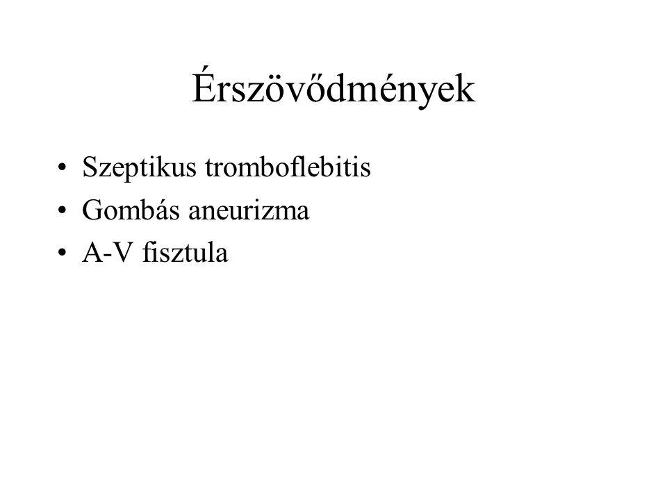 Érszövődmények •Szeptikus tromboflebitis •Gombás aneurizma •A-V fisztula