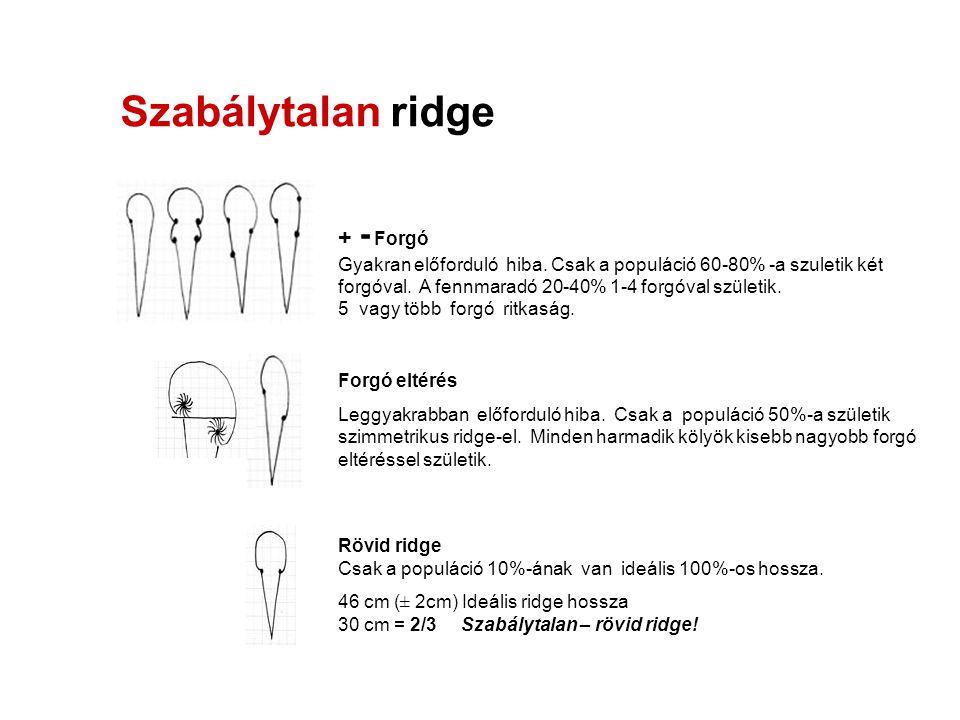 Szabálytalan ridge + - Forgó Gyakran előforduló hiba. Csak a populáció 60-80% -a szuletik két forgóval. A fennmaradó 20-40% 1-4 forgóval születik. 5 v