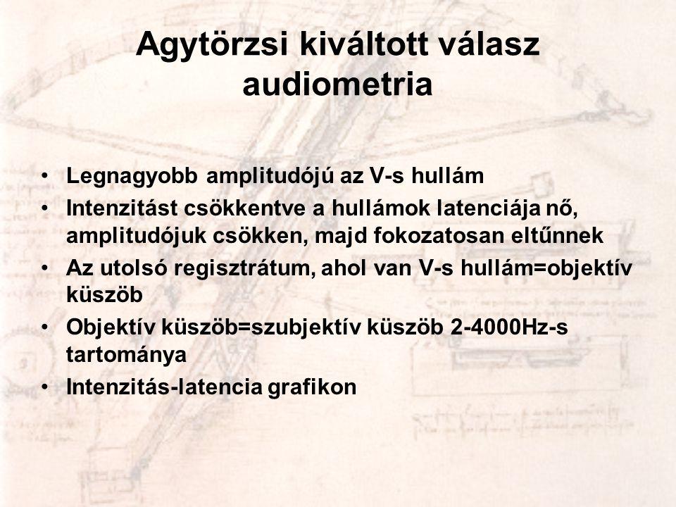 Agytörzsi kiváltott válasz audiometria •Legnagyobb amplitudójú az V-s hullám •Intenzitást csökkentve a hullámok latenciája nő, amplitudójuk csökken, m