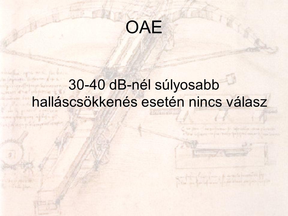 OAE 30-40 dB-nél súlyosabb halláscsökkenés esetén nincs válasz