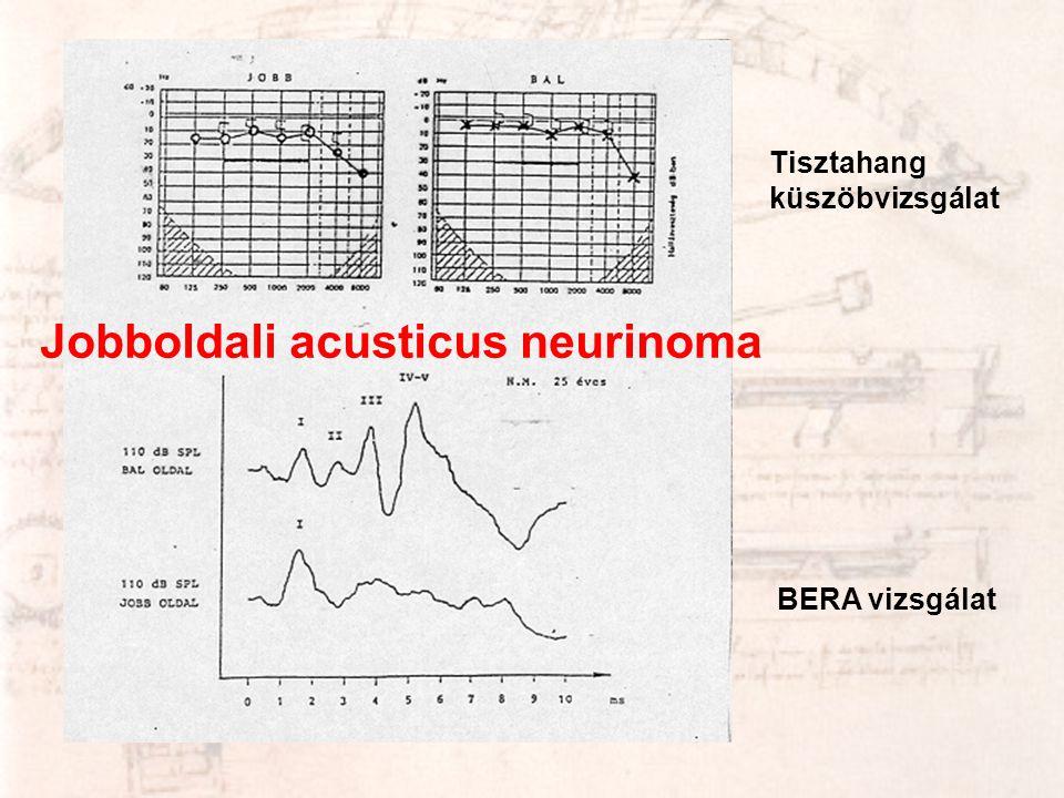 Tisztahang küszöbvizsgálat BERA vizsgálat Jobboldali acusticus neurinoma