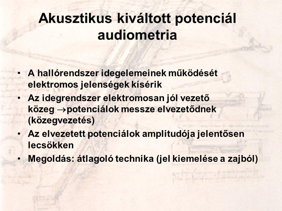 Akusztikus kiváltott potenciál audiometria •A hallórendszer idegelemeinek működését elektromos jelenségek kísérik •Az idegrendszer elektromosan jól ve