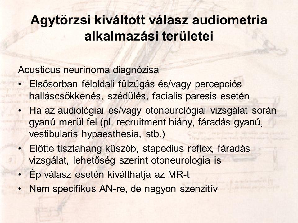 Agytörzsi kiváltott válasz audiometria alkalmazási területei Acusticus neurinoma diagnózisa •Elsősorban féloldali fülzúgás és/vagy percepciós halláscs
