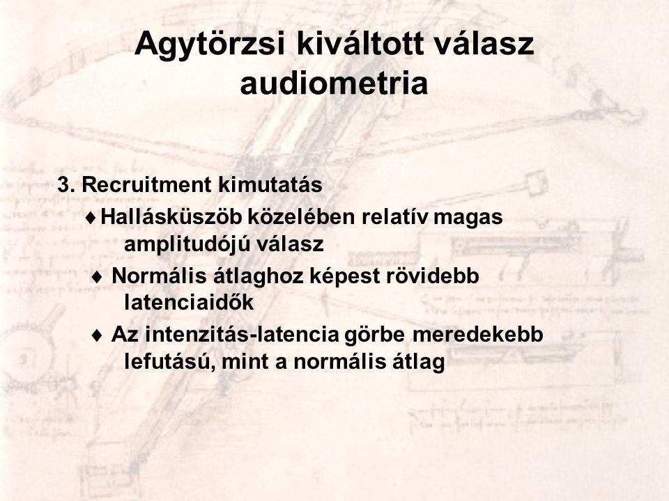 Agytörzsi kiváltott válasz audiometria 3. Recruitment kimutatás  Hallásküszöb közelében relatív magas amplitudójú válasz  Normális átlaghoz képest r