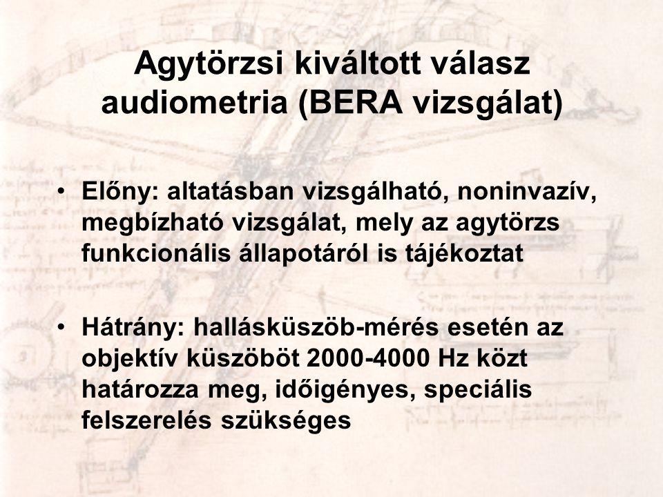 Agytörzsi kiváltott válasz audiometria (BERA vizsgálat) •Előny: altatásban vizsgálható, noninvazív, megbízható vizsgálat, mely az agytörzs funkcionáli