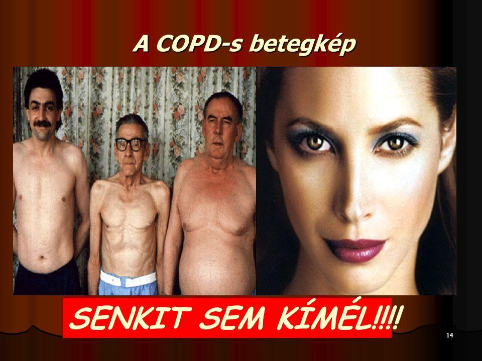 14 A COPD-s betegkép SENKIT SEM KÍMÉL!!!!