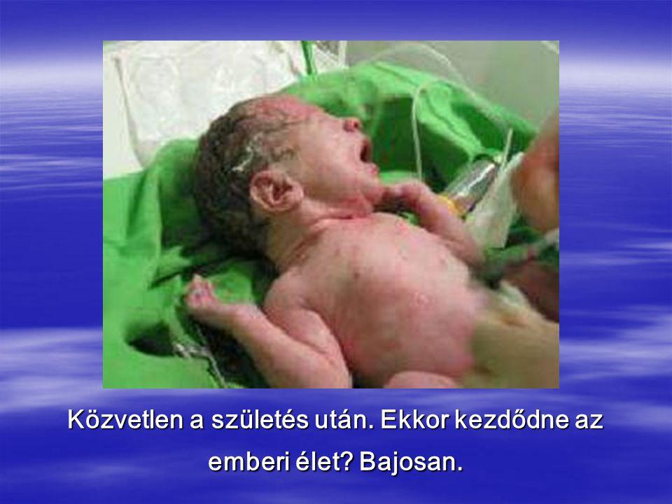 Közvetlen a születés után. Ekkor kezdődne az emberi élet? Bajosan.