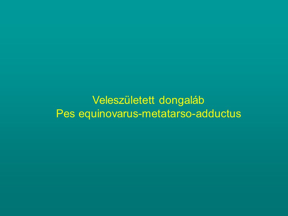 Veleszületett dongaláb Pes equinovarus-metatarso-adductus