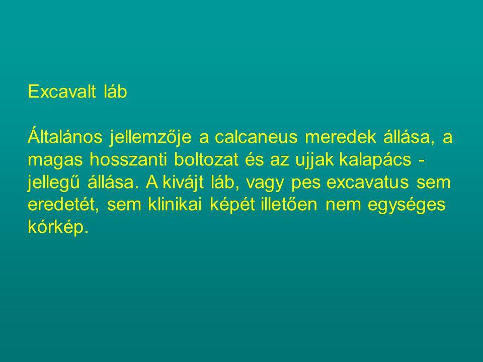 Excavalt láb Általános jellemzője a calcaneus meredek állása, a magas hosszanti boltozat és az ujjak kalapács - jellegű állása.