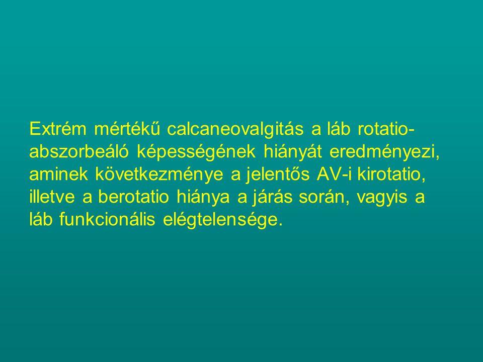 Extrém mértékű calcaneovalgitás a láb rotatio- abszorbeáló képességének hiányát eredményezi, aminek következménye a jelentős AV-i kirotatio, illetve a berotatio hiánya a járás során, vagyis a láb funkcionális elégtelensége.
